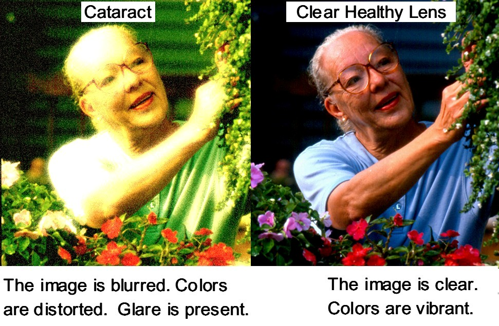 cataract_effects_1