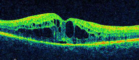 ophthalmic-photography-optical-coherence-tomography-scan-macular-edema